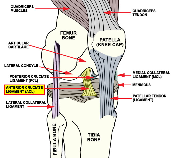 anterior cruciate ligament injury The anterior cruciate ligament (acl) is one of the most commonly injured ligaments of the knee in general, the incidence of acl injury is higher in people who participate in high-risk sports, such as basketball, football, skiing, and soccer.