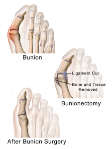 Bunioonectomy Bunion