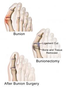 Bunioonectomy Bunion
